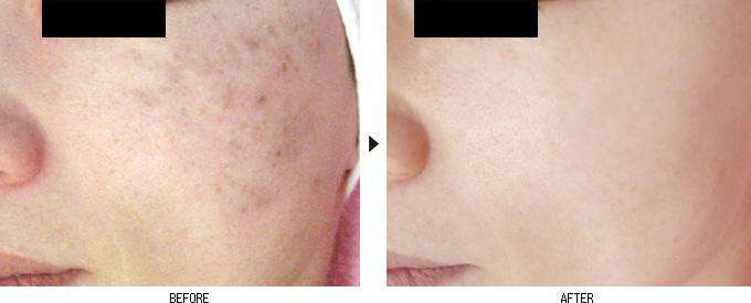 2015年のニキビに効果があった化粧水ランキングを紹介!ニキビに一番効果があった化粧水はこれ!