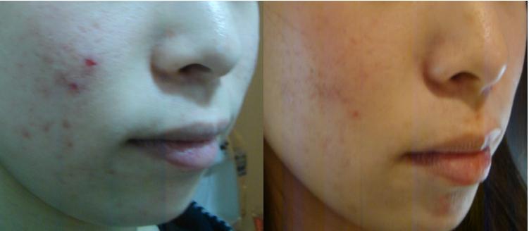 皮膚科医も推奨するニキビケア方法をこっそり紹介!一晩で悲惨なニキビが綺麗になったと口コミで話題