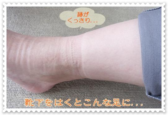 するるのおめぐ実を芸能人も愛用してる?たった一晩で効果がわかる脚痩せ方法を紹介!